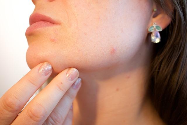 Dieta del acné